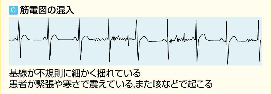 アーチファクト 4つの波形