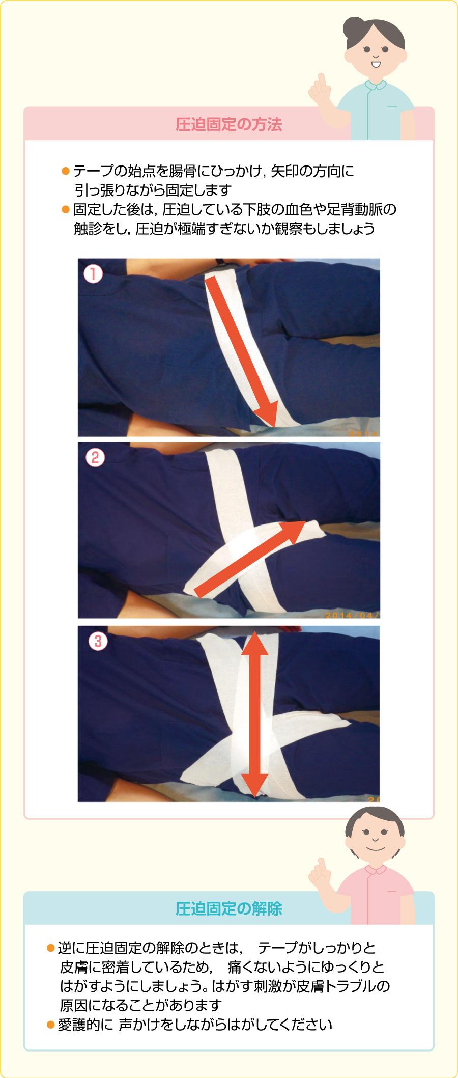 大腿動脈の圧迫固定方法