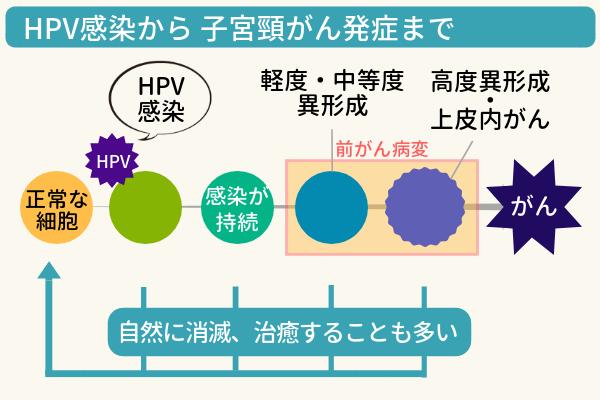 HPV感染から子宮頸がん発症までの図説。正常な細胞がHPVに感染して、一部が軽度・中等度異形成、高度異形成、上皮内がんへと進行し、子宮頸がんを発症する