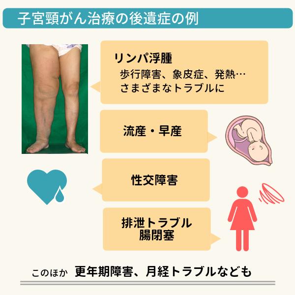 子宮頸がん治療の後遺症の例を示した図表。リンパ浮腫や流産・早産、性交障害、排泄トラブル、腸閉塞、更年期障害、月経トラブルなどが起こる