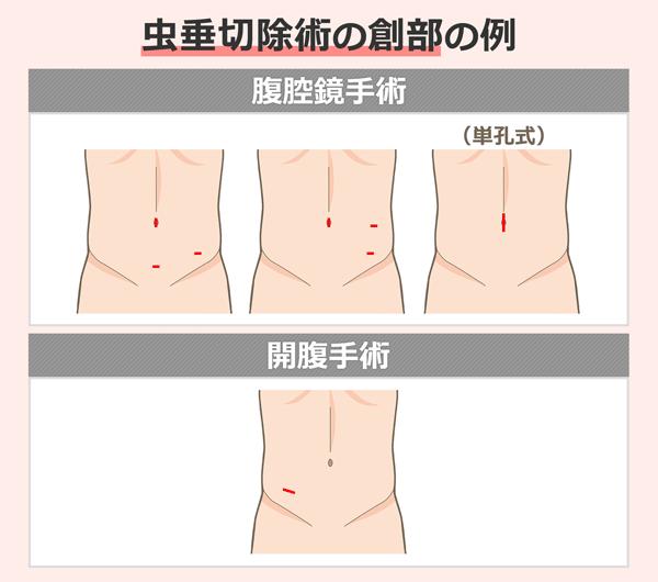 虫垂切除術の創部の例を挙げているイラスト。