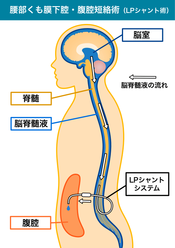 腰部くも膜下腔・腹腔短絡術(LPシャント術)