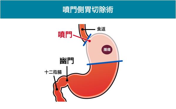 噴門側胃切除術