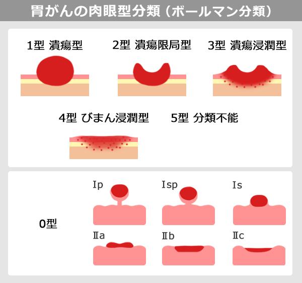 胃がんの肉眼型分類(ボールマン分類)を説明する図表。