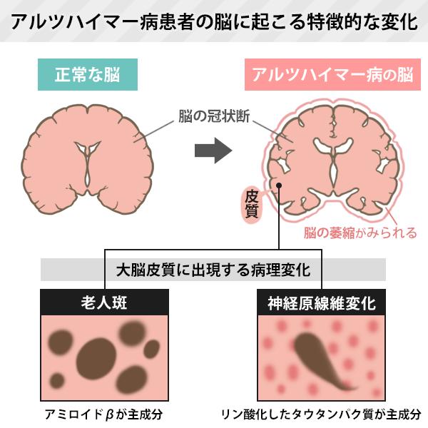 アルツハイマー病患者の脳に起こる特徴的な変化を表した図