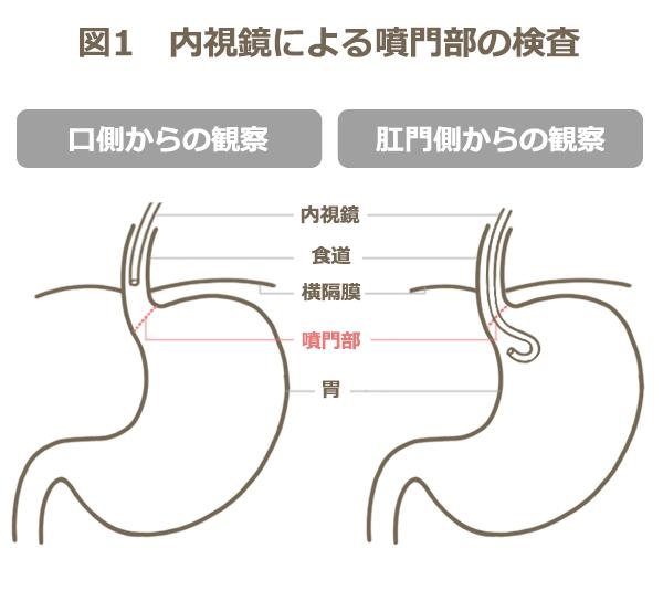 内視鏡による噴門部の検査の観察部位を表す図