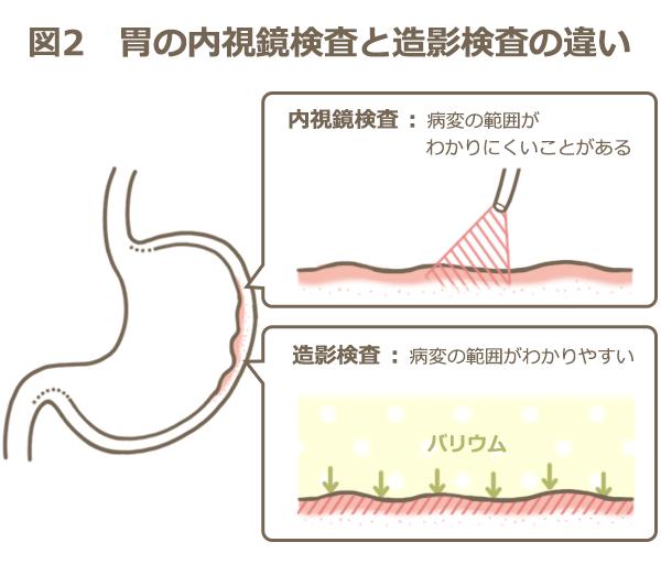 胃の内視鏡検査と造影検査の違いを説明する図