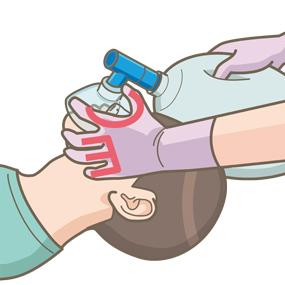 バックバルブマスクを用いた人工呼吸のEC法のイラスト