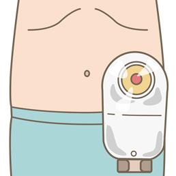 ストーマ(人工肛門)装具を装着している患者の腹部のイラスト