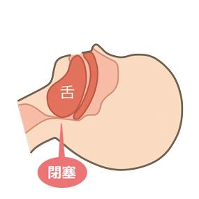 舌根沈下で気道が閉塞しているイラスト