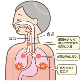 誤嚥性肺炎のイラスト🎨【フリー素材】|看護roo![カンゴルー]