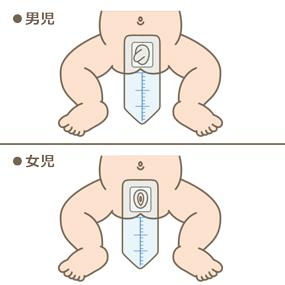 小児(男児・女児)の採尿パックを貼付したイラスト