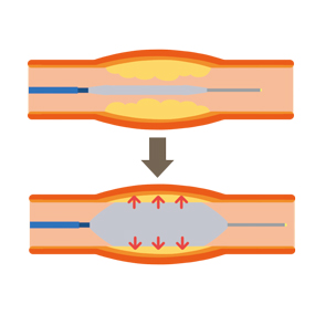 バルーン血管形成術のイラスト