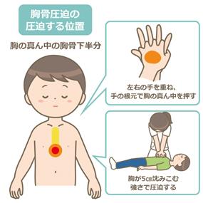 胸骨圧迫のイラスト