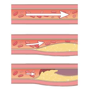 血管が詰まっているイラスト