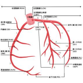 冠動脈のイラスト