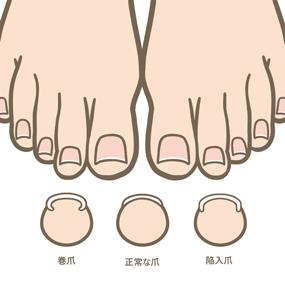 健康な足趾の爪、巻き爪、陥入爪のイラスト