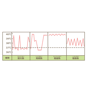 熱型(間欠熱、周期熱、稽留熱、弛張熱)の波形のイラスト