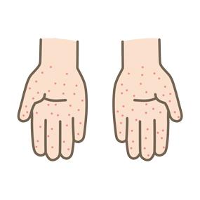 手足口病の発疹が出ている小児の手のひらのイラスト