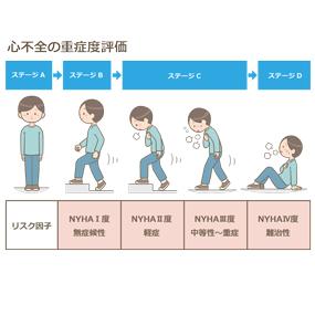 心不全のステージ別症状(重症度評価)のイラスト