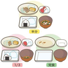 病院食の食事摂取量の目安を表したイラスト(おにぎり食)