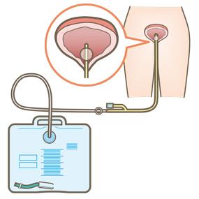 膀胱留置カテーテルのイラスト
