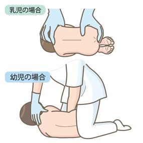 乳児と小児のルンバール介助のイラスト