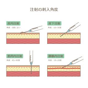 注射の刺入角度(皮内注射、皮下注射、筋肉内注射、静脈内注射)のイラスト