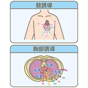 12誘導心電図の肢誘導と胸部誘導を表したイラスト