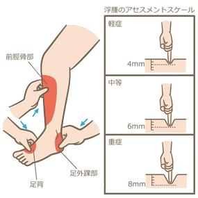 下肢の浮腫の評価部位とアセスメントスケールのイラスト