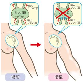 リンパ節郭清術前後の腕のリンパ浮腫のイラスト(乳がん)