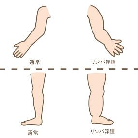 リンパ浮腫のイラスト🎨【フリー素材】 看護roo![カンゴルー]