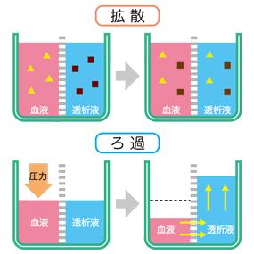 濾過と拡散(透析治療)の仕組みのイラスト