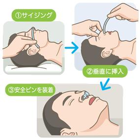 経鼻(鼻腔)エアウェイの挿入手順のイラスト