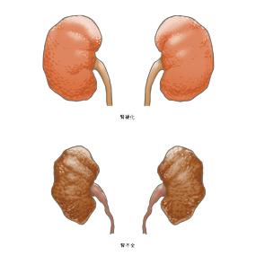 腎硬化と腎不全のイラスト