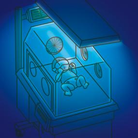 光線療法を受けている新生児のイラスト