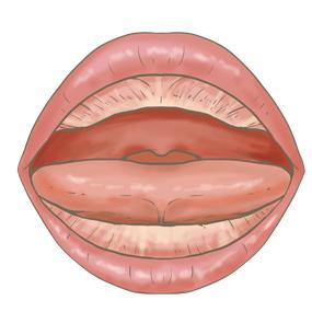 乳児の口腔内のイラスト※着色あり