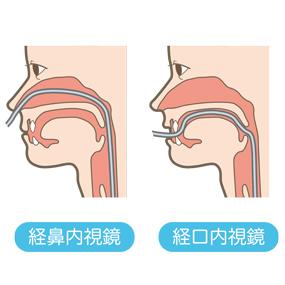 経鼻内視鏡と経口内視鏡の通り道のイラスト