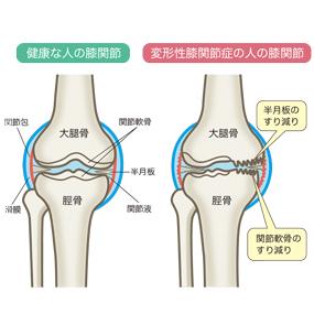 変形性膝関節症のイラスト