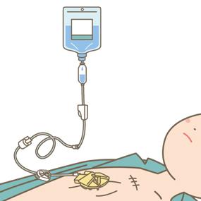 CVポートから点滴を投与する患者のイラスト