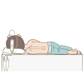 腰部にドレーンを挿入して いる患者のイラスト(ドレーンを肩まで沿わせる固定法)のイラスト