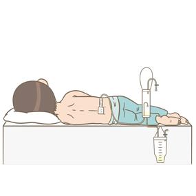 腰部にドレーンを挿入している患者のイラスト(ドレーンを側腹部まで沿わせる固定法)