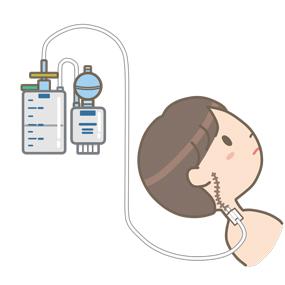 頸部にドレーンを挿入している患者のイラスト