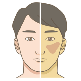 黄疸が出ている患者さん(男性)のイラスト