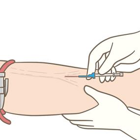 末梢静脈カテーテルを前腕に留置するイラスト