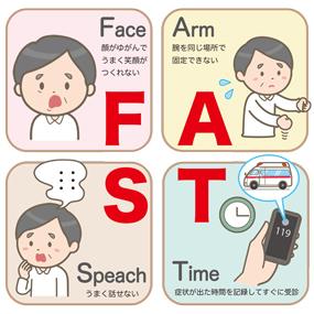 脳血管疾患の徴候【FAST】のイラスト