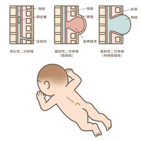 新生児の二分脊椎症の種類のイラスト