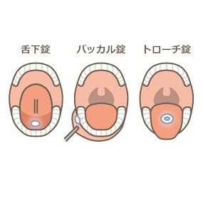 舌下錠・バッカル錠・トローチ錠の内服方法のイラスト