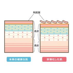 菲薄化した皮膚の構造のイラスト