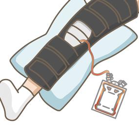 人工膝関節形成術(TKA)の術後でドレーンを挿入しているイラスト